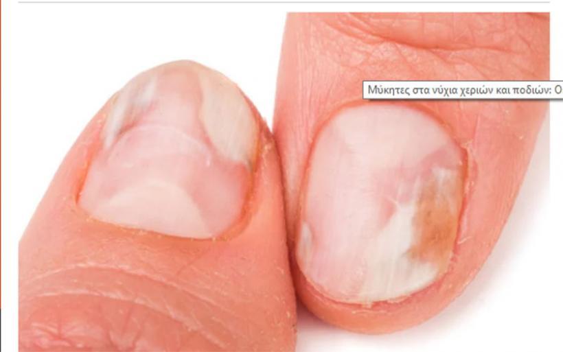 Μύκητες στα νύχια χεριών και ποδιών: Οι 8 κανόνες πρόληψης
