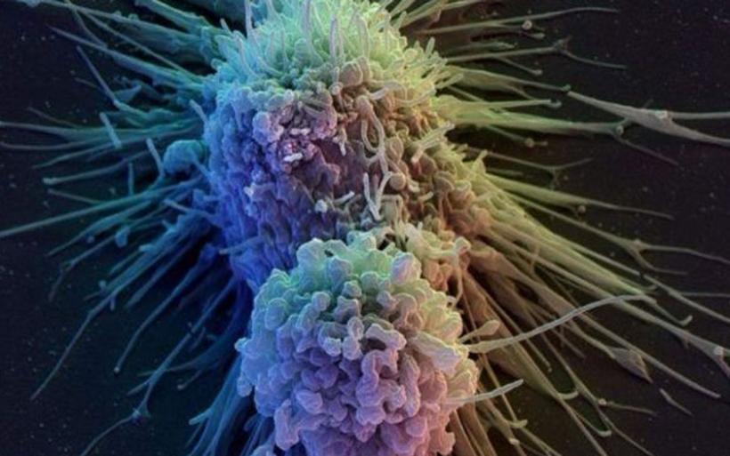 Οι κυριότερες αιτίες που προκαλούν καρκίνο σύμφωνα με τον παγκόσμιο Άτλαντα Καρκίνου