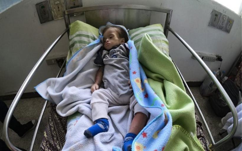Εικόνες σοκ από τη Βενεζουέλα: Σκελετωμένα παιδιά αργοπεθαίνουν κι ο Μαδούρο μιλά για «ψεύτικη κρίση»