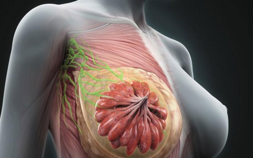 Καρκίνος μαστού: Διάγνωση με ένα χάπι