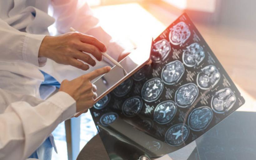 Πολλαπλή σκλήρυνση: Ελπίδες από φάρμακο που δοκιμάστηκε με επιτυχία σε διεθνή κλινική δοκιμή